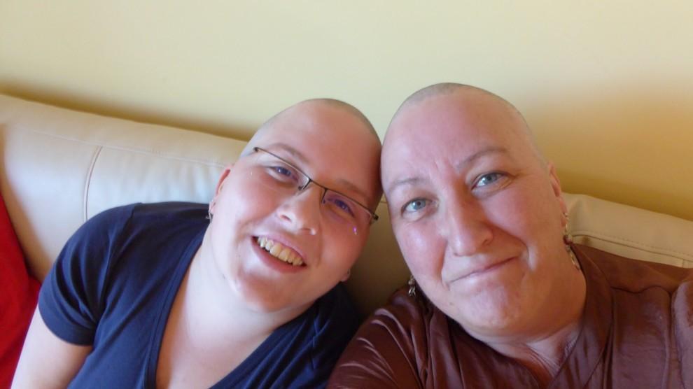 Bald Us
