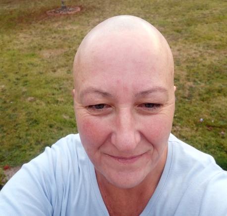 Bald 2017 (3)